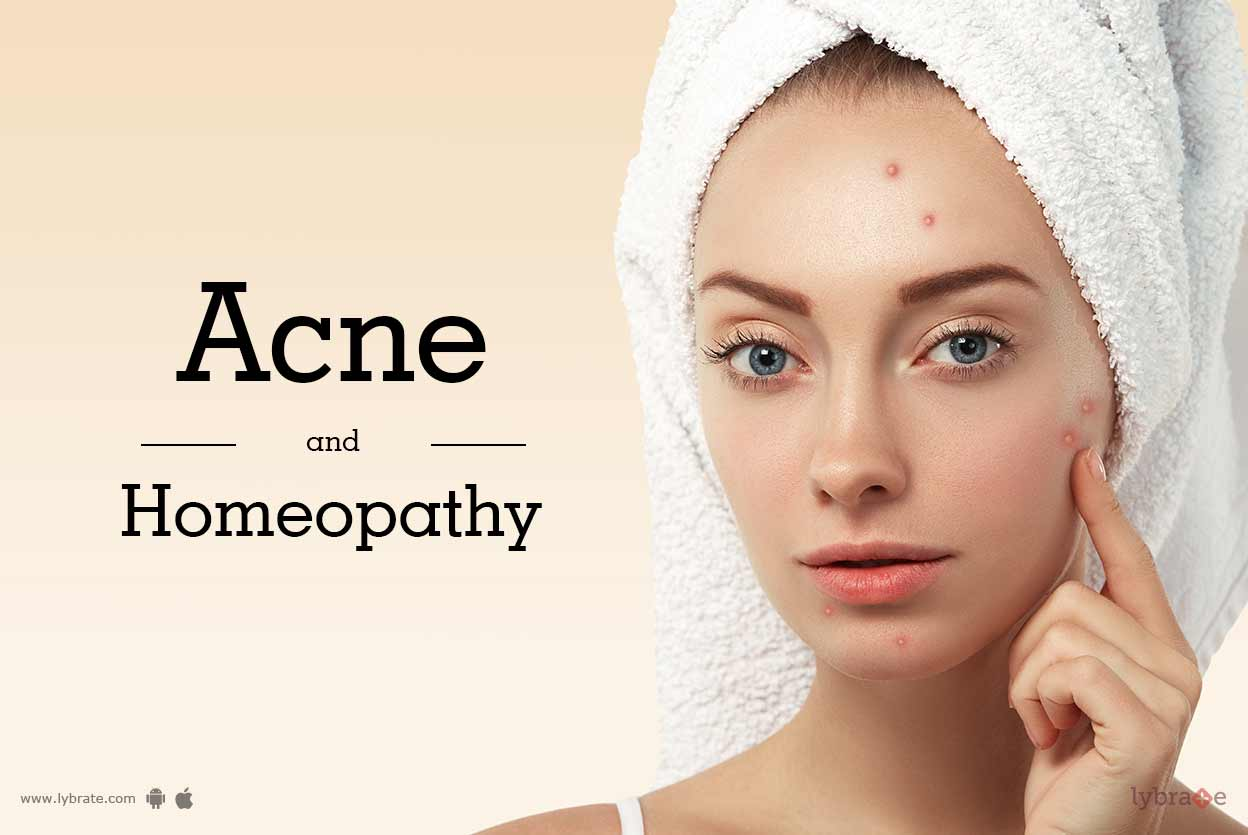 Acne and Homeopathy
