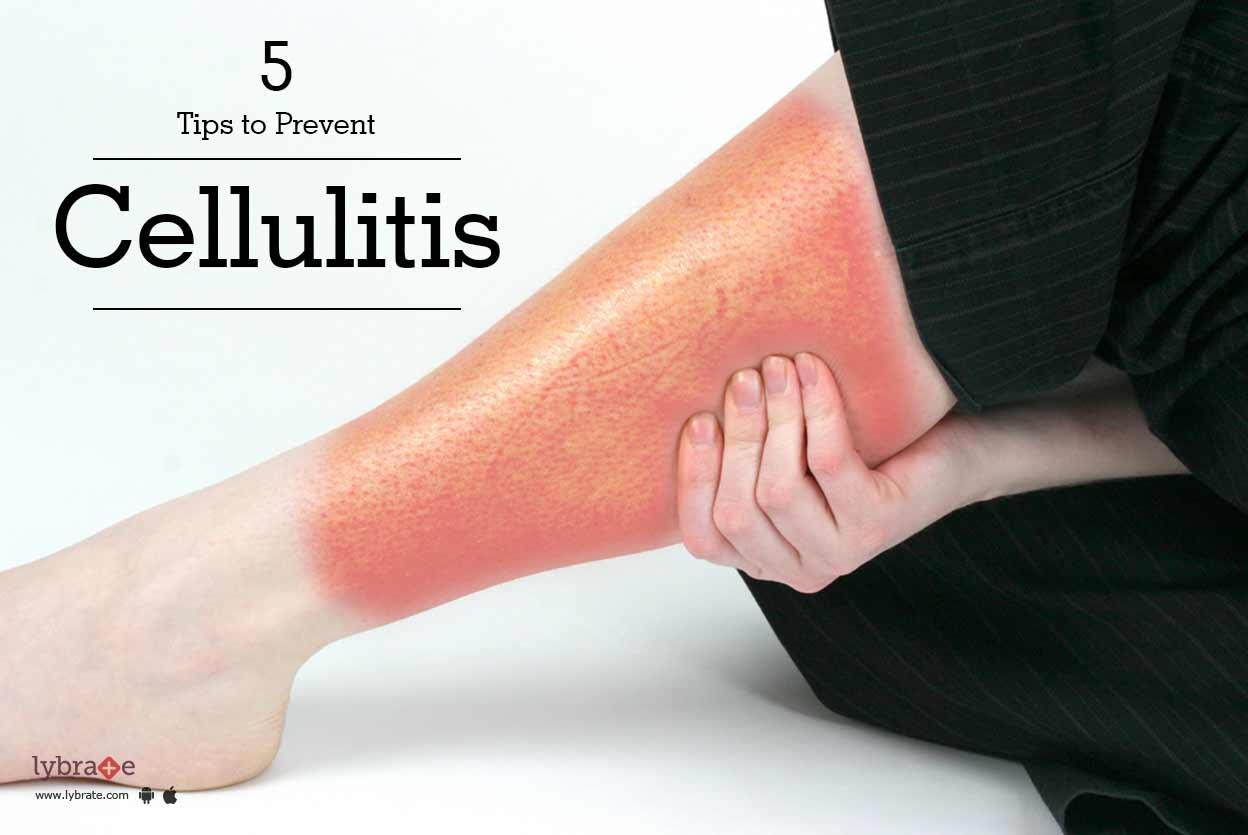 cellulitis tips