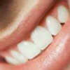 Dr. Satish  - Dentist, Rohtak