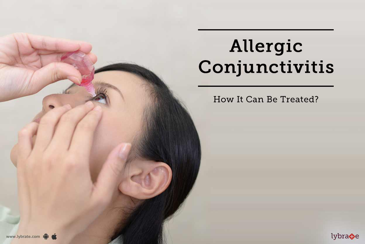 Allergic Conjunctivitis - How It Can Be Treated?