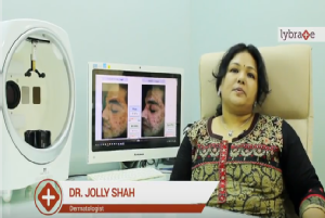 Causes and cosmetic treatment for Acne scars<br/><br/>Hello! I am Dr. Jolly Shah practicing Derma...