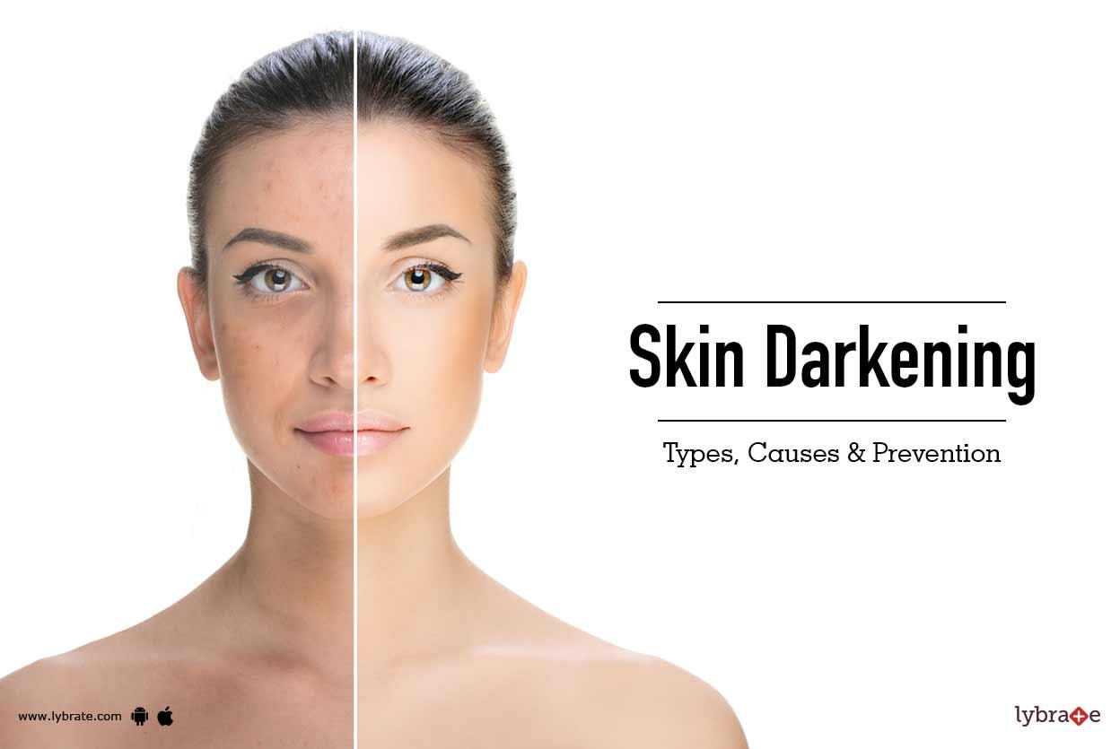 Causes of facial skin darkening