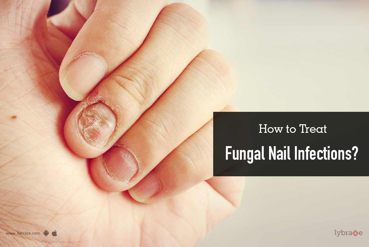 How to Treat Fungal Nail Infections? - By Dr. Akhilendra Singh | Lybrate