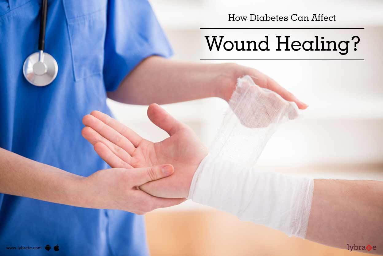 diabetes and wound healing pdf