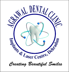 Agrawal Dental Clinic : Implants & Laser Centre, Dehradun