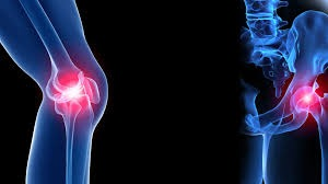 Fracture and Joint Orthopaedic Clinic, Bangalore