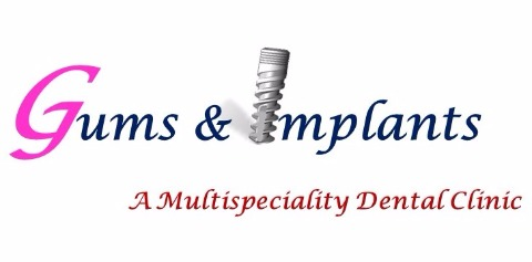 Gums & Implants, New Delhi