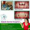 Dr. Adesh Gangwar - Dentist, Bareilly