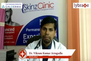 Lybrate | Dr. Vikram kumar arragudla speaks on importance of treating acne early