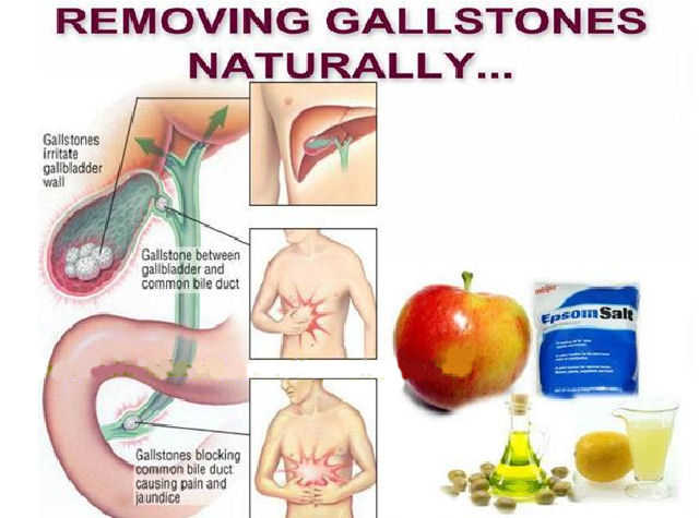 Gallbladder Surgery Avoided With Natural Treatment