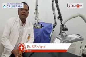 Lybrate | Dr. R p gupta speaks on importance of treating acne early.
