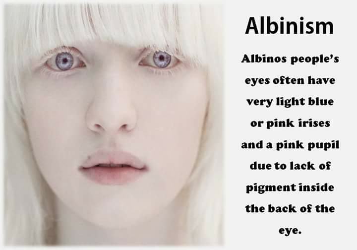 albinism characteristics and symptoms causes and treatments Certain conditions, such as pregnancy or addison's disease  there is no cure  for vitiligo, but there are several treatments, including cosmetic.