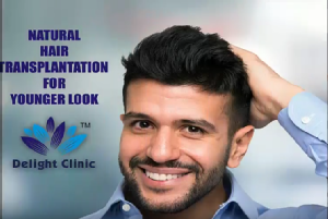What you need to know about hair transplant?