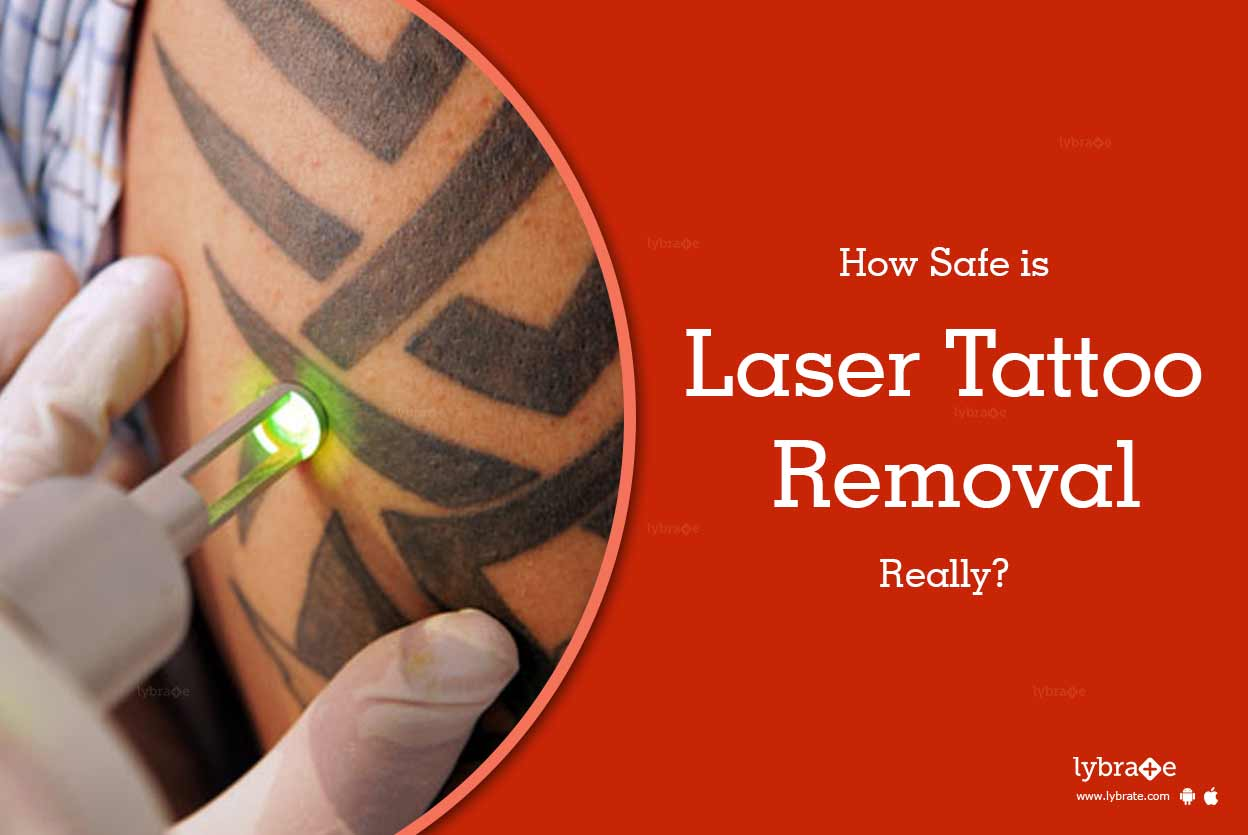 How safe is laser tattoo removal really by dr jolly for Tattoo removal lasers