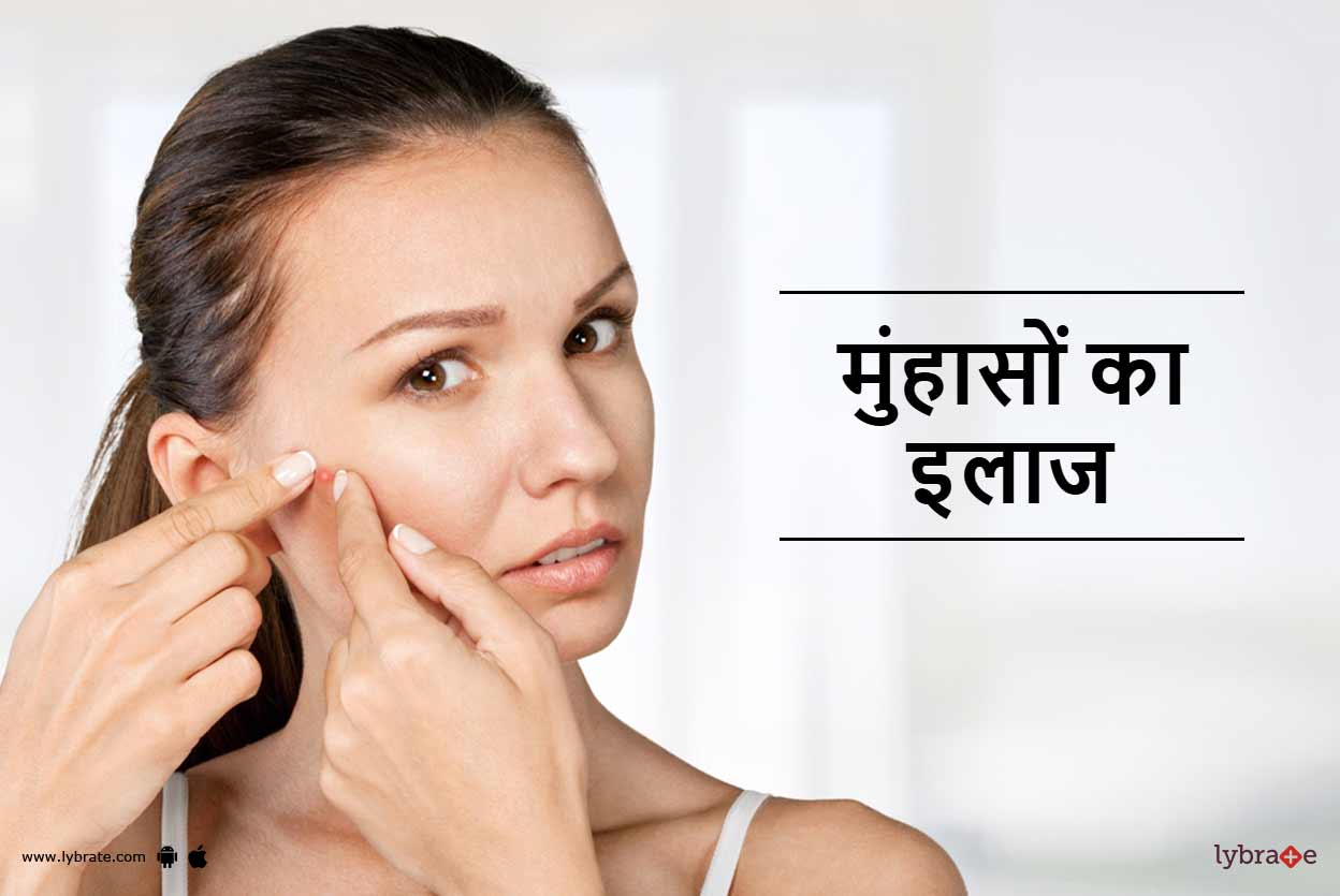 how to get rid of pimple for men