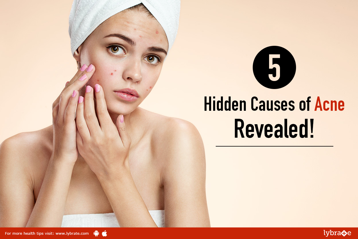 acne pimples causes treatment