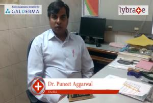 Lybrate | Dr. Puneet aggarwal speaks on importance of treating acne early.