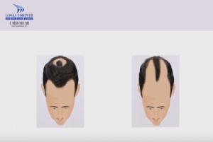 Treatment of hair loss<br/>
