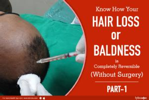 How your hair loss or baldness is completely reversible (non-surgically)<br/><br/>Having deeply r...