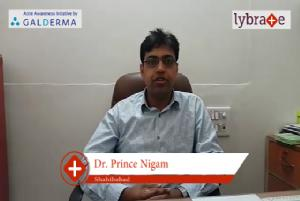 Lybrate | Dr. Prince nigam speaks on importance of treating acne early.