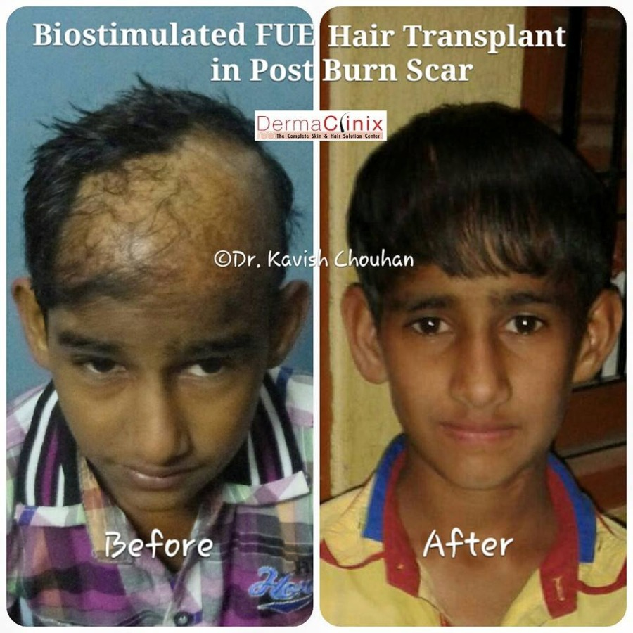 Hair Weaving Doctors In Race Course Road Indore View Cost Book