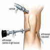 CARE - Sports Injury Clinic & Physiotherapy Centre, Chennai Image 1