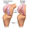 CARE - Sports Injury Clinic & Physiotherapy Centre, Chennai Image 7