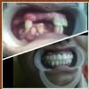 vidhya's eversmile dental clinic Image 4