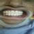 vidhya's eversmile dental clinic Image 2