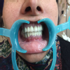 Raina dental clinic Image 2