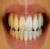 dr.r dental care clinic Image 2