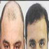 Anagen Hair ,Skin & Obesity Image 1