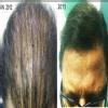 Anagen Hair ,Skin & Obesity Image 3