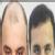 Anagen Hair ,Skin & Obesity,  | Lybrate.com
