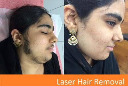 Hair weaving in ahmedabad view cost book appointment consult hair weaving in ahmedabad view cost book appointment consult online pmusecretfo Image collections