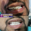 MULTANI DENTAL HOSPITAL & IMPLANT CENTRE - KAPURTHALA Image 5