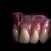 fere dental care Image 6