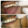 pearl 32 dental care  Image 3