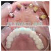 32 DIAMONDS DENTAL CLINIC Image 4