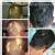 Ayusanjivani Speciality Clinic And Panchakarma Center Image 2