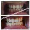 32 Pearls Multispeciality Dental Clinic Image 6