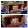 32 Pearls Multispeciality Dental Clinic Image 3