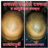 Shree Vishwavallabh Ayurvedic Panchakarma & Skin Care Center Image 3